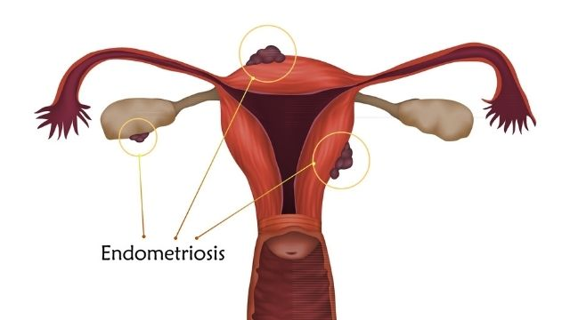 All About Endometriosis Treatment